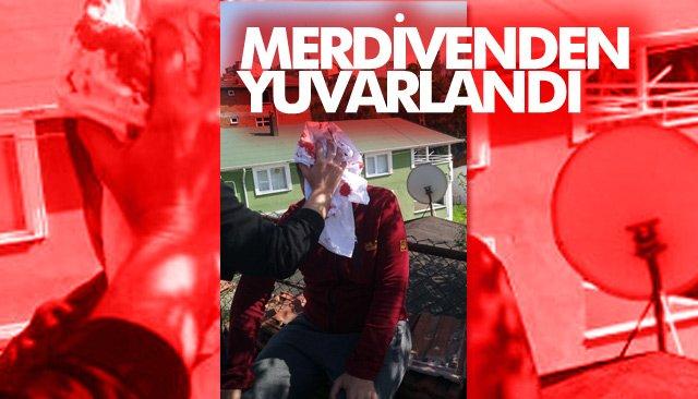 MERDİVENDEN YUVARLANDI